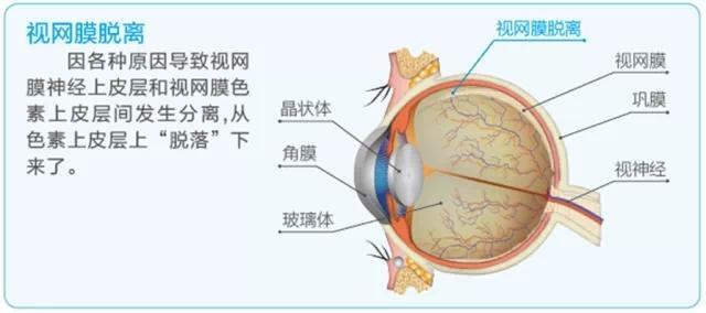 视网膜脱落怎么引起的