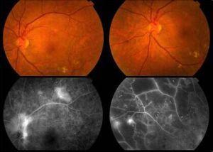 中浆性视网膜病变