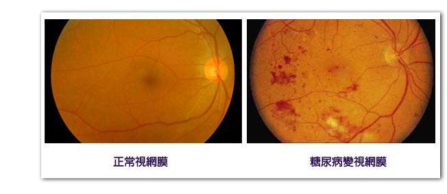 糖尿病型视网膜病变