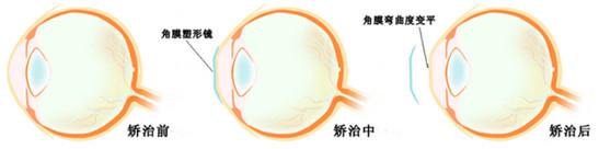 角膜塑形镜矫治分为哪两个阶段?